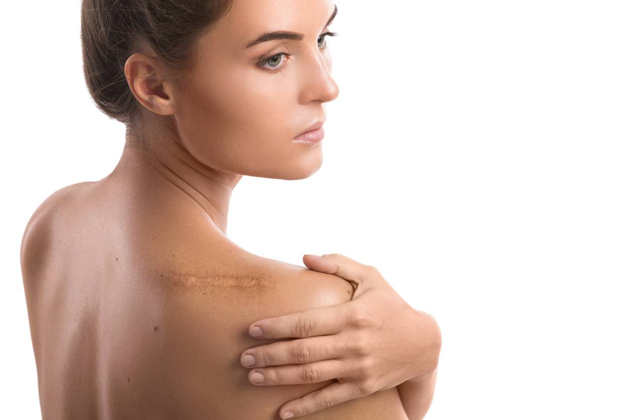 Surgical and Traumatic Scars