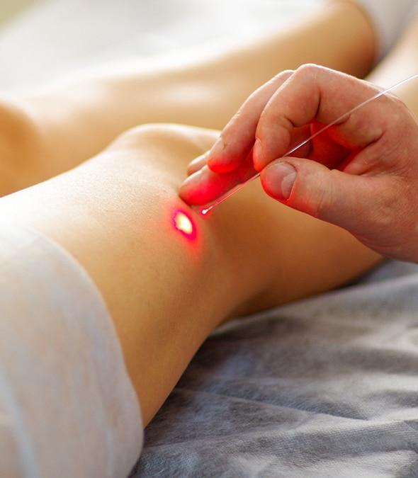 Laser vein treatment