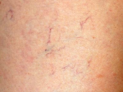 Vein reduction following laser vein treatment
