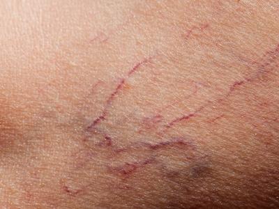 Before laser vein treatments