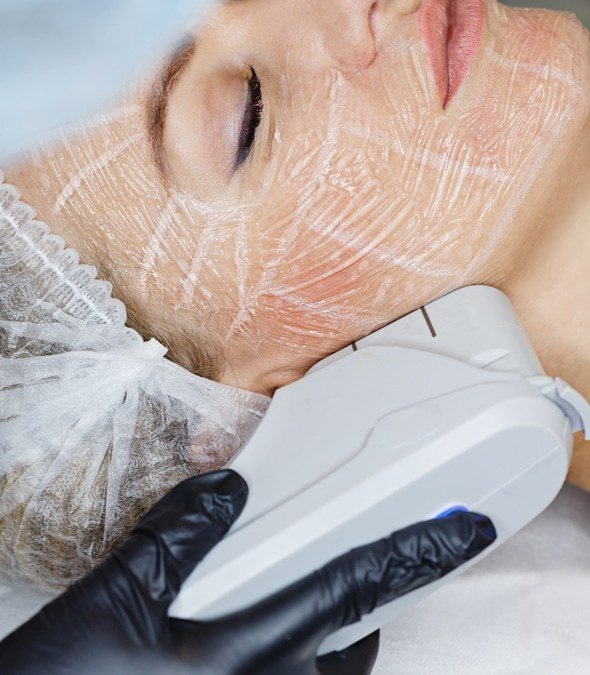 Laser dermatology services being performed on a patient