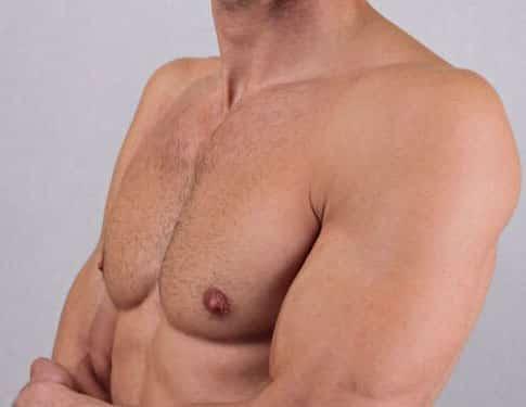 Shoulder After A Laser Tattoo Removal