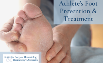 Use Center For Surgical Dermatology's Tips For Preventing And Treating Itchy Athlete's Foot