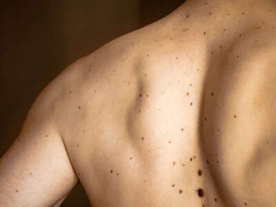 Potentially Dangerous Moles On A Patient's Back