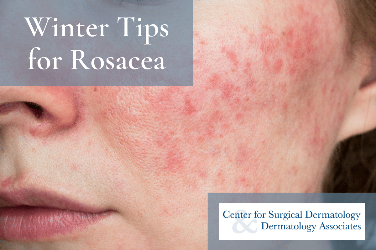 Woman With A Rosacea Flare-up On Her Cheek Being Treated By Center For Surgical Dermatology Associates