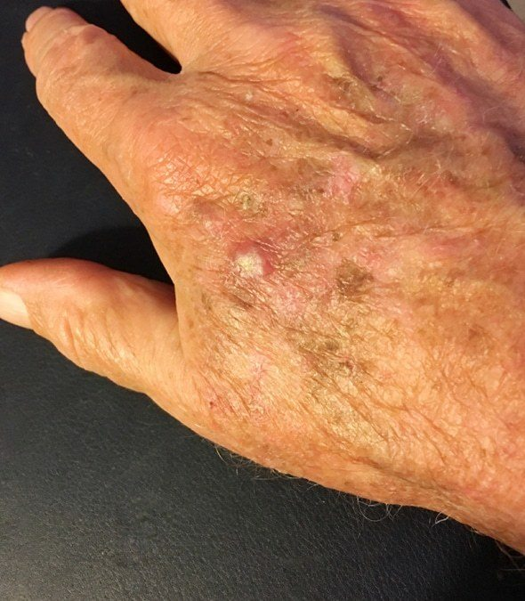 Actinic keratosis on a patient's hand