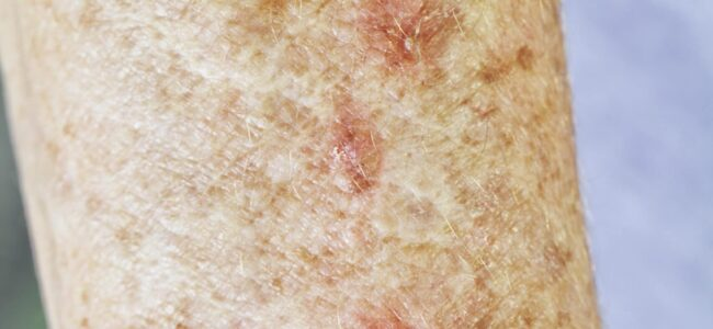 Actinic Keratosis Following Skin Cancer Treatments
