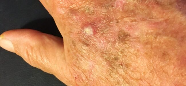 Photo Of Actinic Keratosis