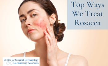 Woman With Rosacea Receiving Rosacea Treatment At The Center For Surgical Dermatology In Westerville And Gahanna, Ohio