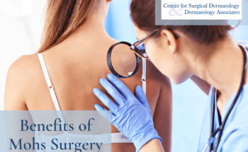 Board-certified Dermatologist At The Center For Surgical Dermatology Examining A Suspicious Mole On A Patient's Skin, Which Might Require Mohs Surgery