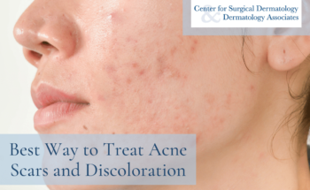 Woman With Post-acne Scarring And Discoloration | How To Treat Acne Scars And Skin Discoloration At The Center For Surgical Dermatology