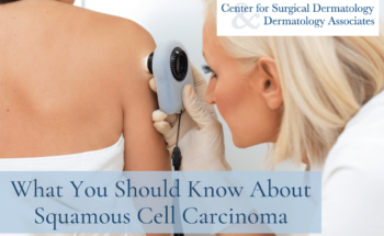 The Dermatologists At The Center For Surgical Dermatology Cover What You Need To Know Know About Squamous Cell Carcinoma
