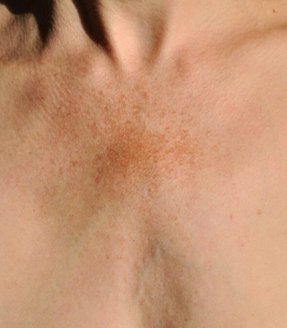 Brown pigment spots on a skin of a middle age woman. Pigmentation disorder.