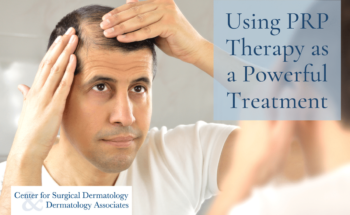 Man With Hair Loss, Which May Be Treated With PRP Therapy At The Center For Surgical Dermatology